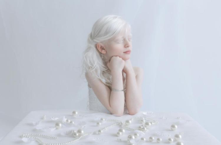 albino-kişinin-özellikleri-cahil.co
